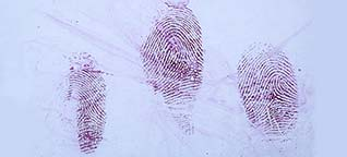 Fingerprints in blood on steel can after staining with Crowle's stain.